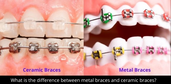 What is the difference between metal braces and ceramic braces?